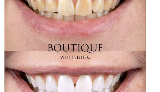 At Diamond Smiles we offer the Boutique Whitening system, a home tooth whitening kit that allows you...