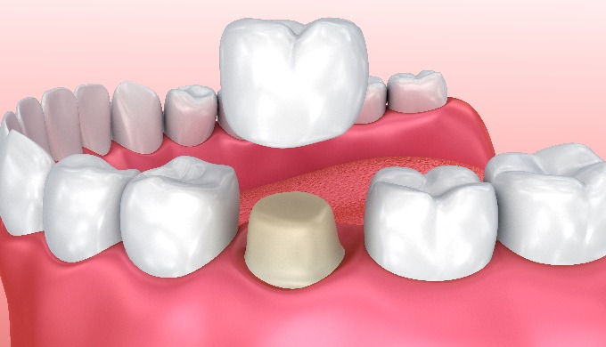 We are a full service family dentist office serving Langley, BC providing quality continuing care in...