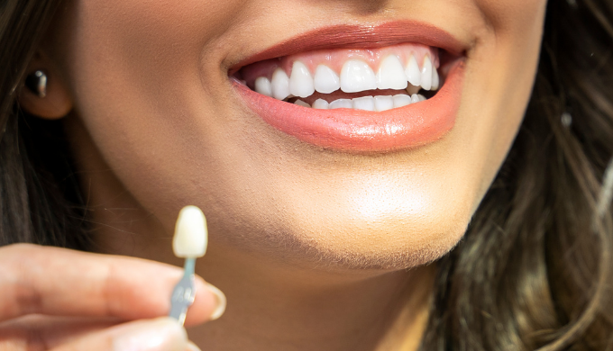We offer a complete range of smile design solutions with dental cosmetic treatments to include Compo...
