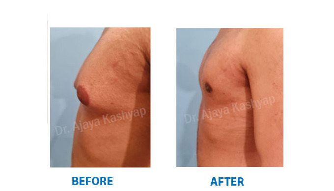 The condition of enlarged breast tissues in males is known as Gynecomastia. The breast tissues inclu...